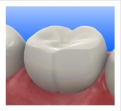 Tooth-Colored Fillings | Fort Worth TX