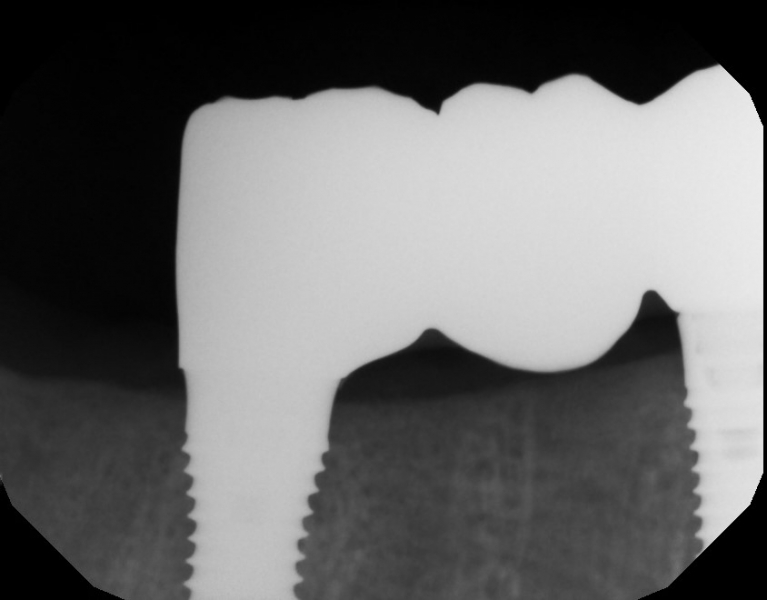 Implant v bridge