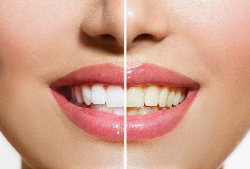 How Teeth Whitening Can Help Your Career & Social Life